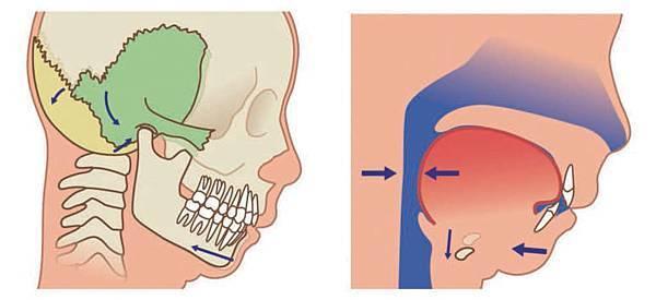 姿勢錯了傷自律神經 1個運動讓身體回正2.jpg