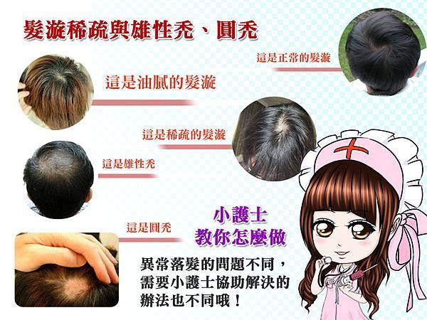 維髮健治療掉髮,更重視你的身體健康。關於髮漩稀疏、頭髮空洞、圓禿與雄性禿