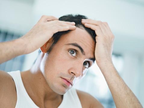 Saw Palmetto 鋸棕櫚 (Serenoa repens)有效治療異常落髮(雄性禿、圓禿、休止期落髮、產後落髮、減重落髮等各類型異常落髮)