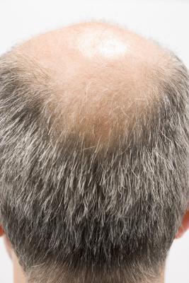 大蕁麻 (NETTLE) 治療掉髮?(中英對照)