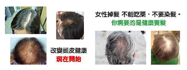 女性掉髮問題