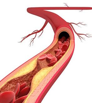 「心血管」的圖片搜尋結果
