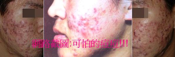 痘痘01.png
