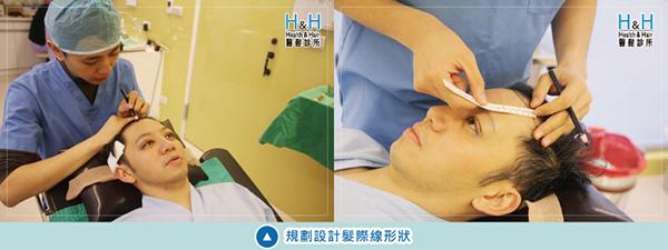 植髮-劉醫師-5-小圖.jpg