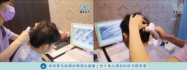 植髮-劉醫師-2-小圖.jpg
