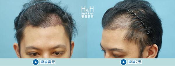植髮-劉醫師-8-小圖.jpg
