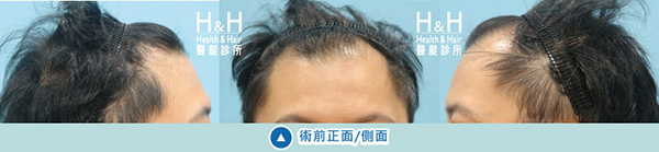植髮-劉醫師-7-小圖.jpg