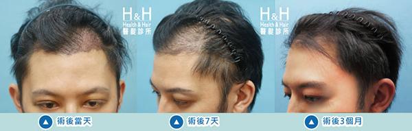 植髮-劉醫師-9-小圖.jpg