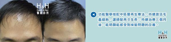 生髮-D先生-2.jpg
