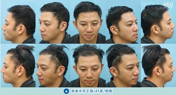 植髮-劉醫師-10.jpg