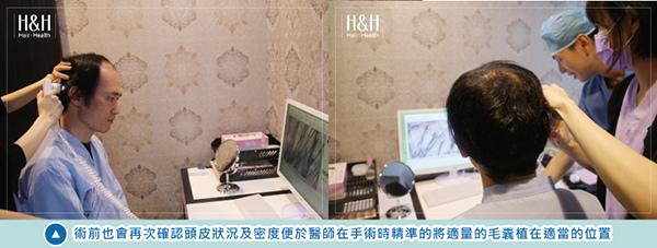 植髮-小應-3.jpg