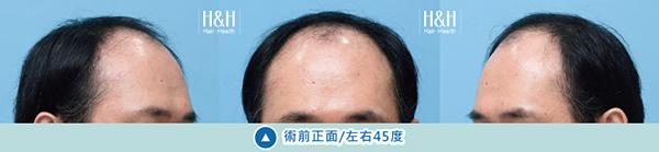 植髮-小應-7.jpg