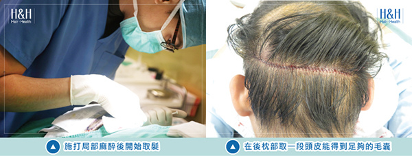 Transplant-banner-chen-2.jpg