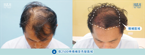 Transplant-banner-chen-4.jpg