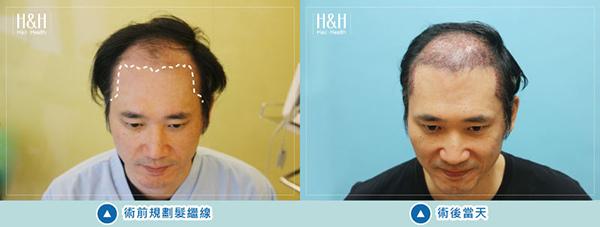 Transplant-shiau.ying-11.jpg