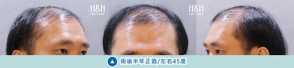 Transplant-shiau.ying-9.jpg