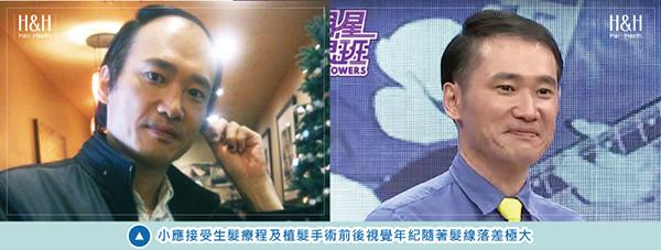 Transplant-shiau.ying-14.jpg