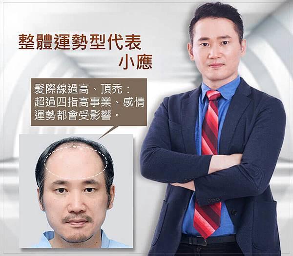 髮際線植髮提升4大運勢,顏值加分運勢滿分