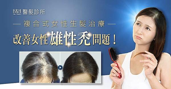 複合式女性生髮治療,改善女性雄性禿問題!
