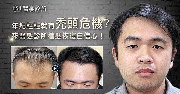 年紀輕輕就有禿頭危機?來醫髮診所植髮恢復自信心!
