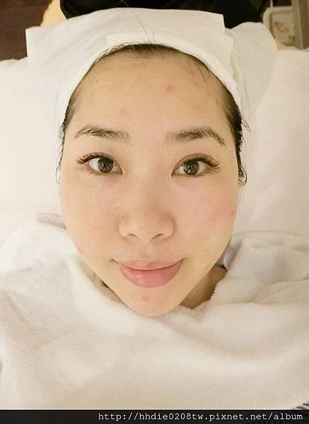 臉部線條立體緊V-醫美診所推薦