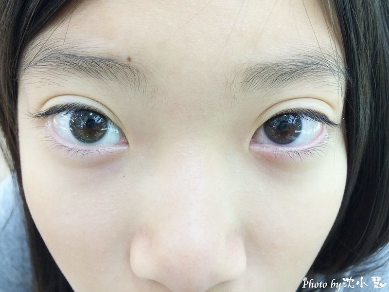 大學眼科-角膜塑型片 (11).jpg