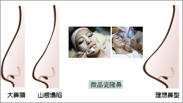 微晶瓷隆鼻玻尿酸隆鼻03