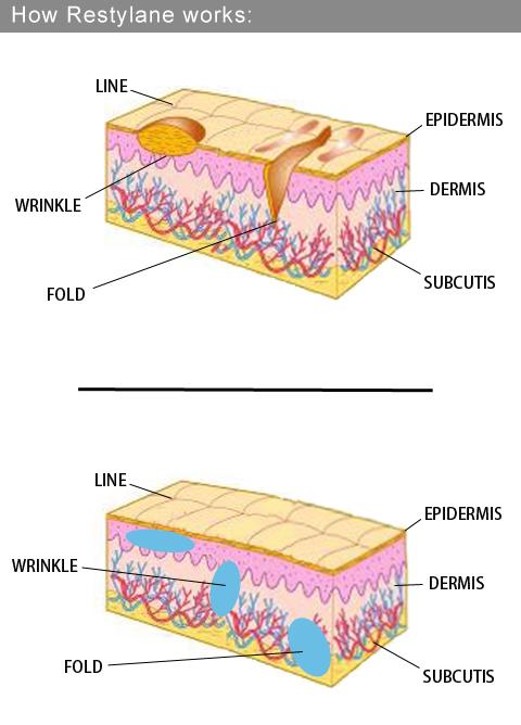 玻尿酸蘋果肌液態拉皮3D聚左旋乳酸E