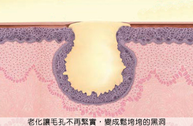 皮膚老化皺紋鬆弛肉毒桿菌玻尿酸法令紋電波拉皮3D聚左旋乳酸液態拉皮04.jpg