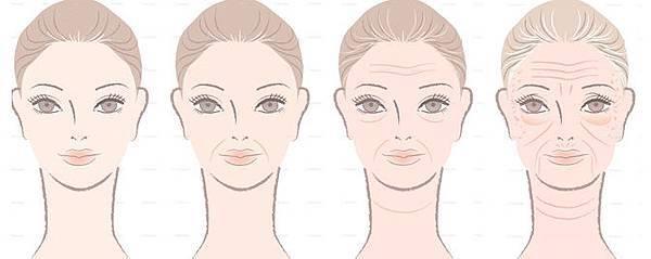 皮膚老化皺紋鬆弛肉毒桿菌玻尿酸法令紋電波拉皮3D聚左旋乳酸液態拉皮05.jpg