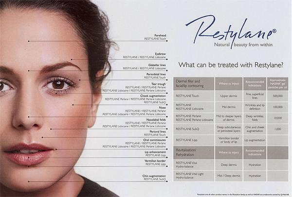 玻尿酸瑞絲朗海德密絲水微晶安緹絲喬雅登凝膠型玻尿酸液態矽膠淚溝法令紋雙頰凹陷蘋果肌9.jpg