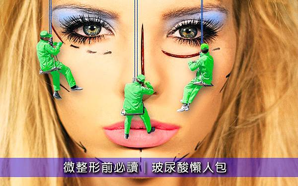 童顏針3D聚左旋乳玻尿酸瑞絲朗海德密絲水微晶安緹絲喬雅登凝膠型玻尿酸液態矽膠淚溝法令紋雙頰凹陷蘋果肌.jpg