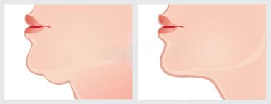 瓜子臉微晶瓷玻尿酸微整形肌膚鬆垮雙下巴膠原蛋白大餅臉09.jpg