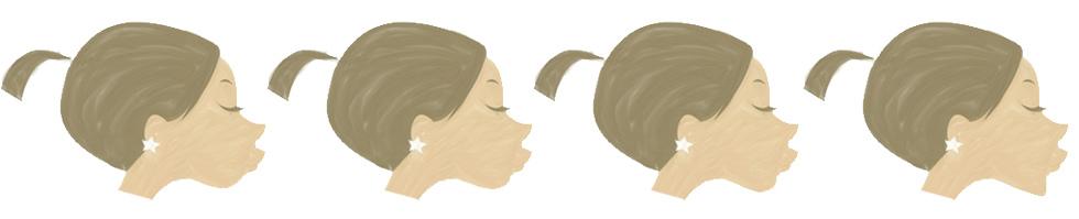 瓜子臉微晶瓷玻尿酸微整形肌膚鬆垮雙下巴膠原蛋白大餅臉10.jpg