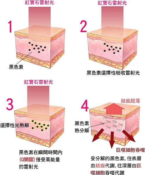 雷射斑紋紅寶石雷射黑色素術後保溼防曬抗UV療程5.jpg