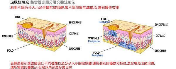光纖粉餅雷射蘋果肌玻尿酸3D聚左旋乳酸電波拉皮微晶瓷瓜子臉CPT電波拉皮維納斯曲線電波4D羽毛線拉提12.jpg
