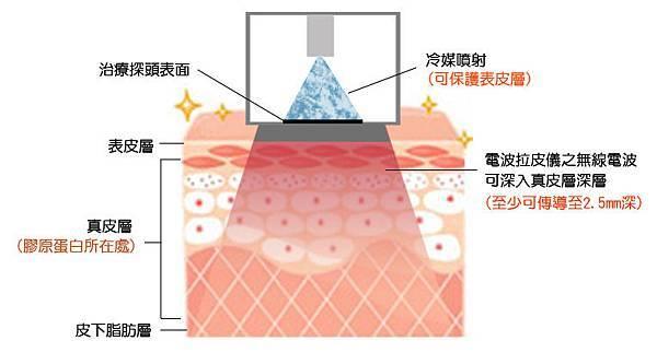 光纖粉餅雷射蘋果肌玻尿酸3D聚左旋乳酸電波拉皮微晶瓷瓜子臉CPT電波拉皮維納斯曲線電波4D羽毛線拉提14.jpg