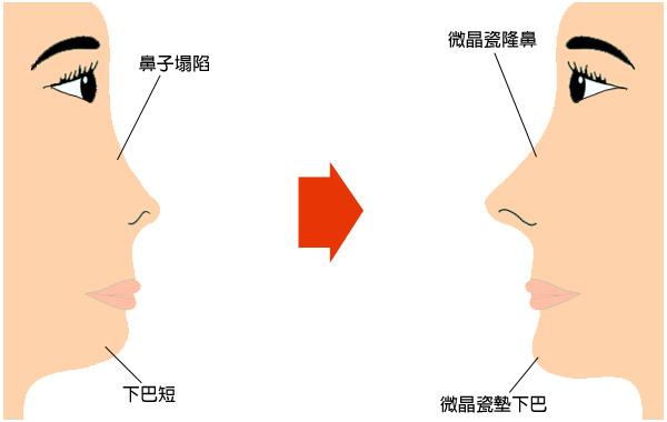 晶亮瓷微晶瓷隆鼻墊下巴玻尿酸蘋果肌膠原蛋白山根V臉10.jpg