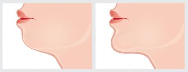 晶亮瓷微晶瓷隆鼻墊下巴玻尿酸蘋果肌膠原蛋白山根V臉11.jpg