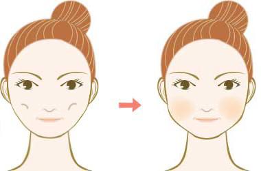 晶亮瓷微晶瓷隆鼻墊下巴玻尿酸蘋果肌膠原蛋白山根V臉12.jpg
