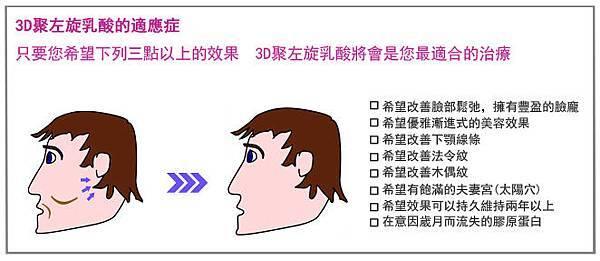3D聚左旋乳酸老化膠原蛋白液態拉皮CPT電波拉皮木偶紋法令紋4.jpg