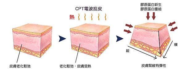 3D聚左旋乳酸老化膠原蛋白液態拉皮CPT電波拉皮木偶紋法令紋5.jpg