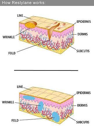 3D聚左旋乳酸老化膠原蛋白液態拉皮CPT電波拉皮木偶紋法令紋6.jpg