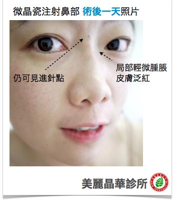 玻尿酸 隆鼻 推薦 微晶瓷 隆鼻 推薦 美麗晶華 玻尿酸 隆鼻 美麗晶華 微晶瓷 隆鼻 推薦10.png