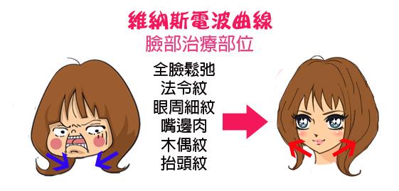 臉型變化 3D聚左旋乳酸 4D羽毛線拉皮 維納斯曲線電波 抗老 除皺 美麗晶華 推薦 -017