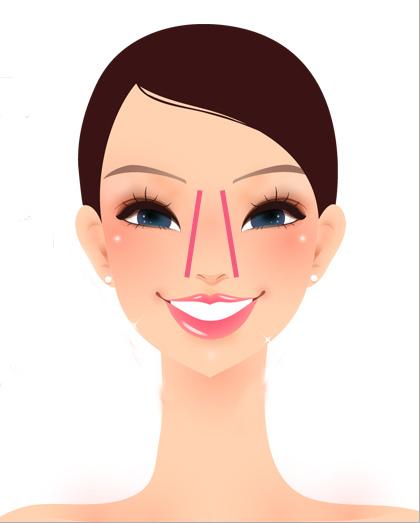 推薦美麗晶華微整熱門晶亮瓷玻尿酸肉毒桿菌下巴隆鼻蘋果肌瘦小臉微晶瓷山根 (13)