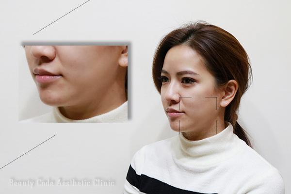 美麗晶華診所4D埋線拉皮拉提緊緻V臉微整形12.jpg