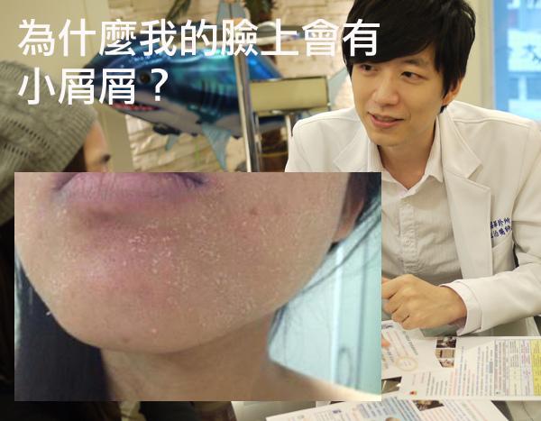 臉上屑屑 皮膚乾燥 肌膚問題 敏感型肌膚 保濕 乾燥 水涵氧 痘疤粉刺 痘痘 粉刺