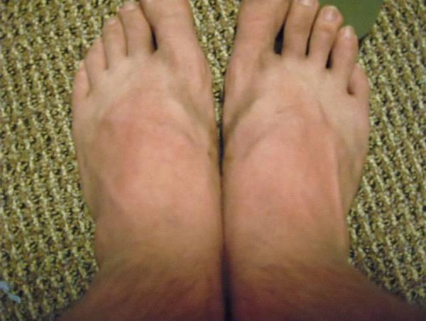被曬傷的雙腳