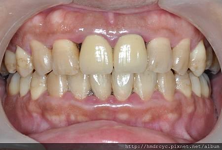 鄭胤捷醫師 高雄 牙醫推薦